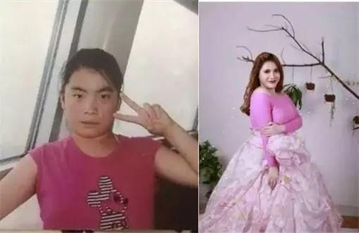 "Gadis 17 Tahun Ini Pernah ""Operasi 13 Kali"" untuk Menjadi Cantik, Alasan Dibaliknya Sungguh Mengharukan!"